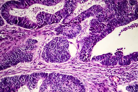 Adénocarcinome intestinal différencié, micrographie optique, photo sous microscope Banque d'images