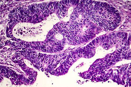 Differentiated intestinal adenocarcinoma, light micrograph, photo under microscope