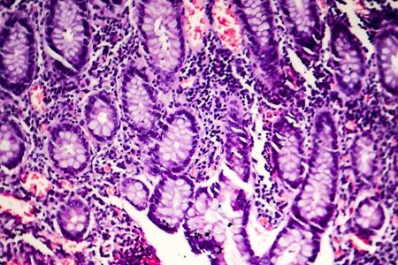 Poorly differentiated intestinal adenocarcinoma, light micrograph, photo under microscope Stock Photo