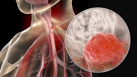 Esophageal cancer, 3D illustration showing malignant tumor in the human esophagus