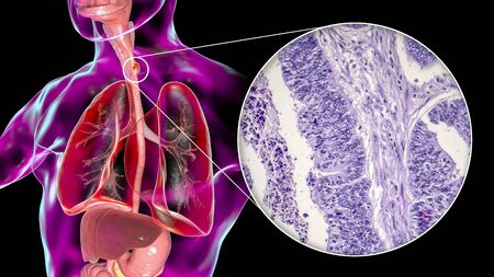 Esophageal cancer, 3D illustration and light micrograph, photo under microscope