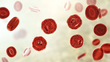 Blood smear in malaria patient. Plasmodium vivax inside red blood cell in the stage of ring-form trophozoite, the causative agent of malaria disease, 3D illustration