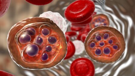 Malaria infection, 3D illustration. Plasmodium parasites inside red blood cells in the stage of schizont