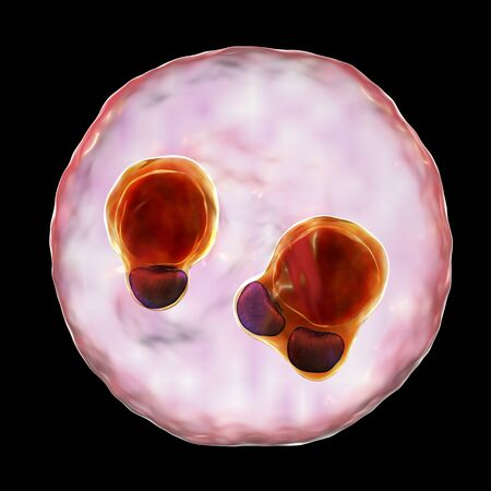The malaria-infected red blood cell. 3D illustration showing ring-form trophozoites of malaria parasite Plasmodium falciparum inside red blood cells, the causative agent of tropical malaria Stock Photo