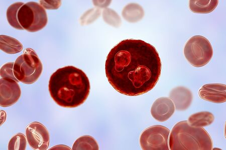 The malaria-infected red blood cells. 3D illustration showing ring-form trophozoites of malaria parasite Plasmodium falciparum inside red blood cells, the causative agent of tropical malaria