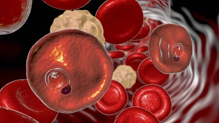 Red blood cells infected with malaria parasite Plasmodium vivax, ring-form trophozoite stage, 3D illustration Stock Photo