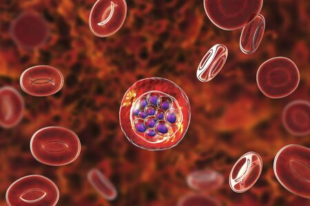 Red blood cells infected with malaria parasite Plasmodium vivax, schizont stage, 3D illustration