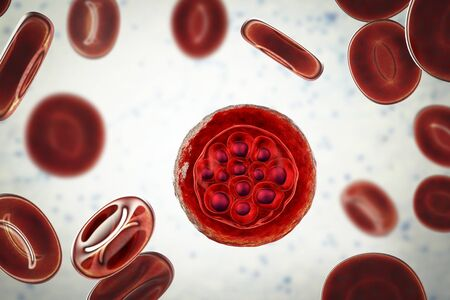 Red blood cell infected with malaria parasite Plasmodium vivax in schizont stage, 3D illustration