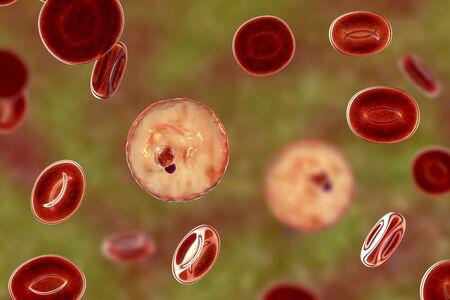 Zainfekowana malarią czerwona krwinka. Ilustracja 3D przedstawiająca pasożyta Plasmodium malariae w stadium trofozoitu w formie pierścieniowej