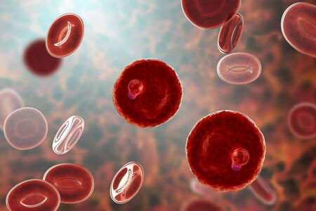 The malaria-infected red blood cell. 3D illustration showing parasite Plasmodium malariae in the stage of ring-form trophozoite