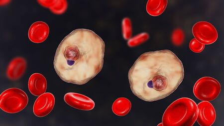 The malaria-infected red blood cell. 3D illustration showing malaria parasite Plasmodium ovale in the stage of ring-form trophozoite Stock Photo