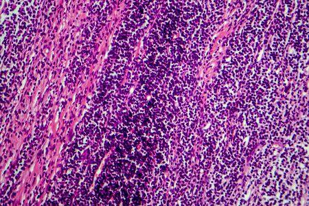 Hodgkins lymphoma, light micrograph, photo under microscope