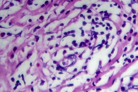 Hodgkins lymphoma, light micrograph, photo under microscope. High magnification