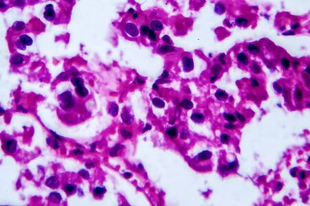 Renal cell carcinoma, light micrograph, photo under microscope. High magnification