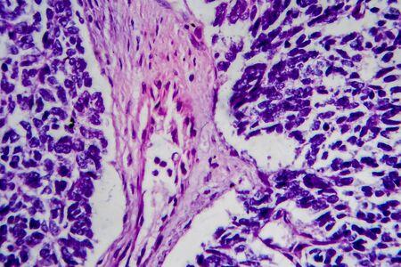 Wilms tumor, or nephroblastoma, light micrograph, photo under microscope Zdjęcie Seryjne