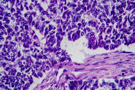 Wilms tumor, or nephroblastoma, light micrograph, photo under microscope. High magnification