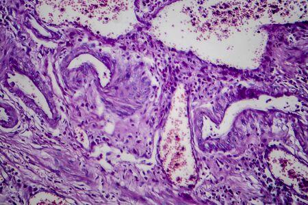 Carcinome à cellules transitionnelles de la vessie, micrographie optique, photo sous microscope