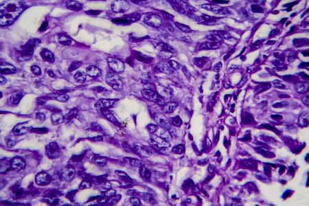 Bladder transitional cell carcinoma, light micrograph, photo under microscope. High magnification