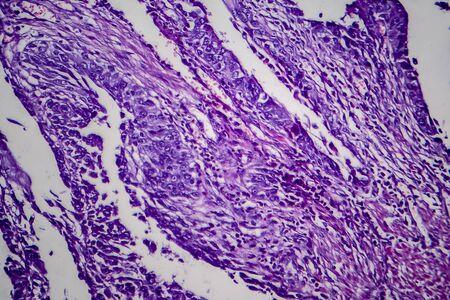 Bladder transitional cell carcinoma, light micrograph, photo under microscope