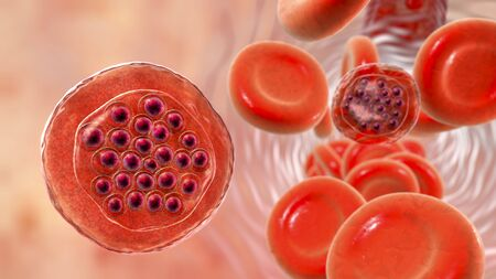 The malaria-infected red blood cells. 3D illustration showing parasite Plasmodium falciparum in schizont stage inside red blood cells, the causative agent of tropical malaria