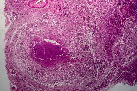 Renal tuberculosis, light micrograph, photo under microscope