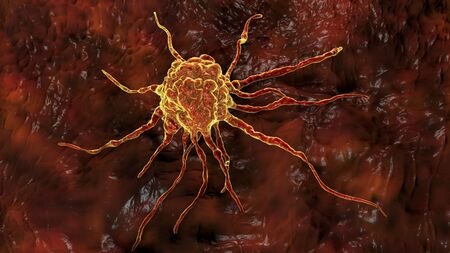 Cancer cell, tumour cell, close-up view, 3D illustration 写真素材 - 133694987