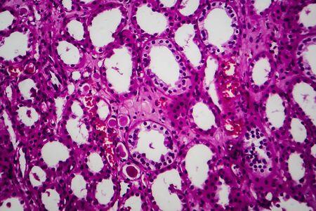 Tubular atrophy, light micrograph, photo under microscope