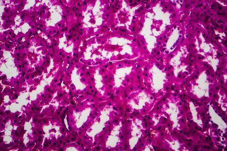 Tubular atrophy, light micrograph, photo under microscope. High magnification