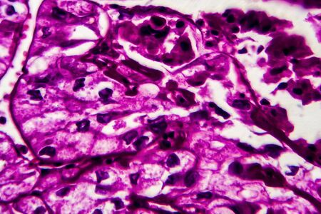 Kidney cancer, light micrograph, photo under microscope. High magnification