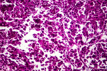 Nierenkrebs, lichtmikroskopische Aufnahme, Foto unter dem Mikroskop Standard-Bild