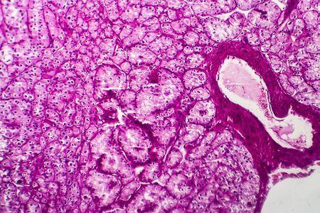 Kidney cancer, light micrograph, photo under microscope