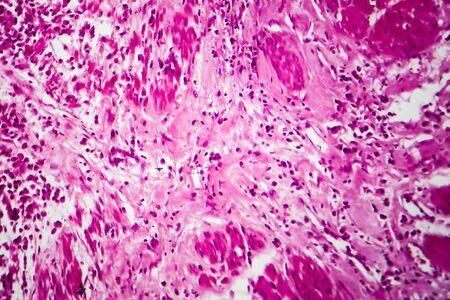 Blasenkrebs, lichtmikroskopische Aufnahme, Foto unter dem Mikroskop Standard-Bild