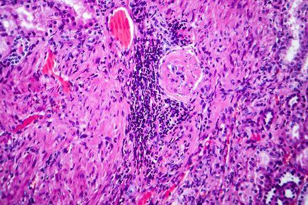 Histopathology of hypertensive renal disease, light micrograph, photo under microscope