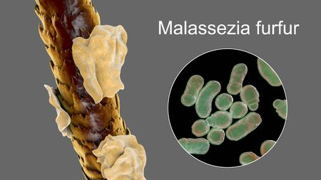 Human hair with dandruff and close-up view of microscopic fungi Malassezia furfur that cause dandruff and seborrhoeic dermatitis, 3D illustration