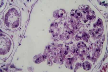 Acute glomerulonephritis, light micrograph, photo under microscope. High magnification