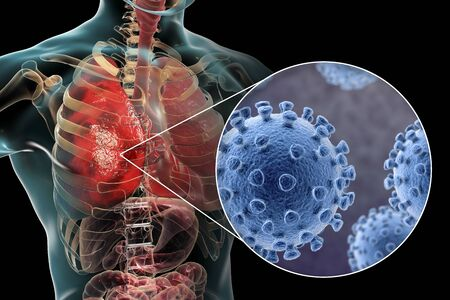 Pneumonia caused by  coronavirus 2019-nCoV, conceptual 3D illustration Stock Photo