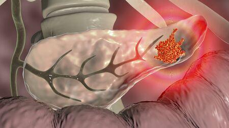 Pancreatic cancer, malignant tumor of pancreas, 3D illustration