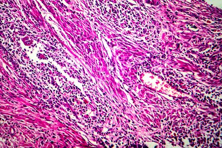 Squamous cell carcinoma of the uterus, light micrograph, photo under microscope Stock Photo