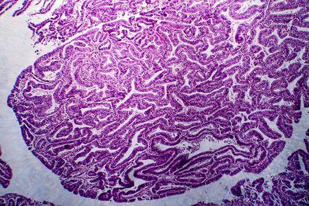 Endometrial adenocarcinoma, light micrograph, photo under microscope Stock Photo