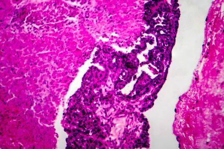 Papillary serous ovarian adenocarcinoma, cancer of ovary, light micrograph, photo under microscope