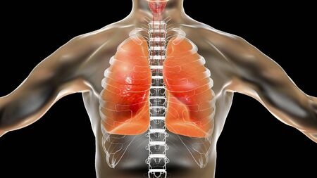 Pneumonia, lung infection, 3D conceptual medical illustration. COVID-19 or other viral or bacterial infection of human lungs Reklamní fotografie