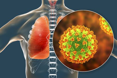 SARS-CoV-2 viruses in alveoli of human lungs causing COVID-19. Novel Coronavirus infection, 3D illustration