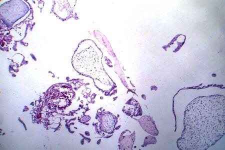 Hydatiform mole, light micrograph. Gestational trophoblastic disease with abnormal chorionic villi 版權商用圖片