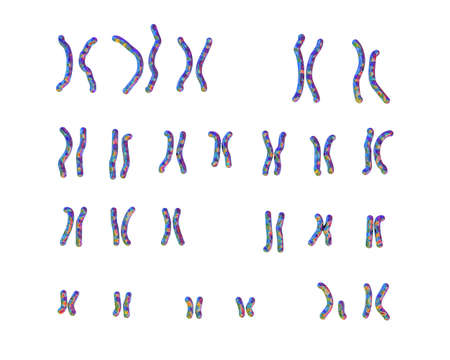 Karyotype of Cri du chat, or cats cry, syndrome, also known as 5p- syndrome