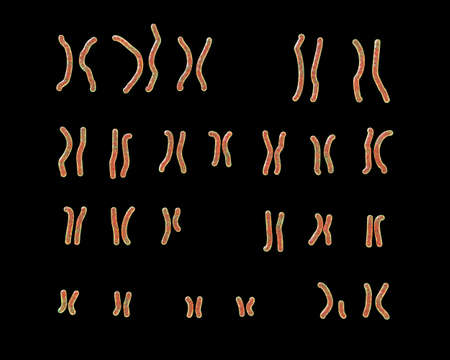Karyotype of Prader-Willi syndrome