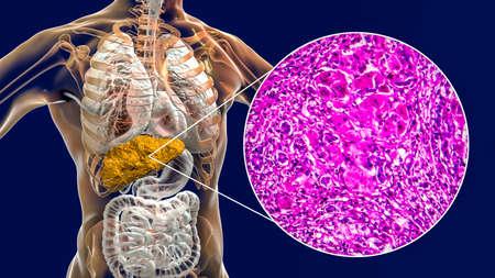 Liver with cirrhosis inside human body. 3D illustration and light micrograph of portal cirrhosis