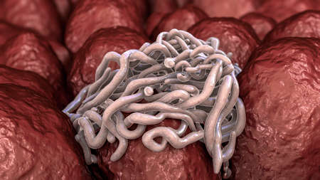 Parasitic worms in intestine Stock Photo