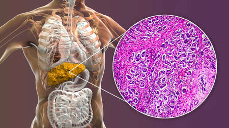 Liver with biliary cirrhosis Stock Photo