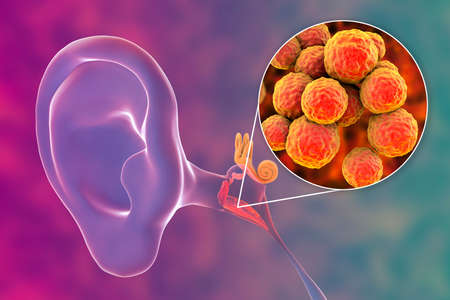 Otitis media, inflammatory disease of the middle ear