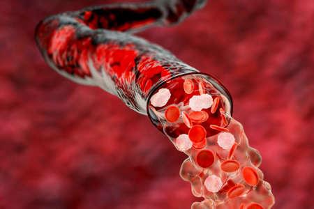 Blood flowing from the damaged blood vessel, hemorrhage, 3D illustration